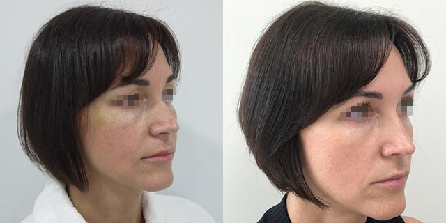 lipoface-results-03b