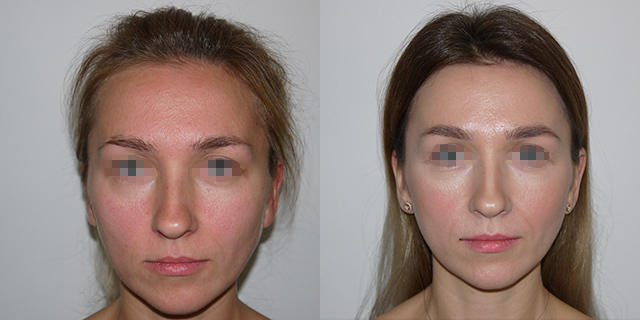 lipoface-results-04