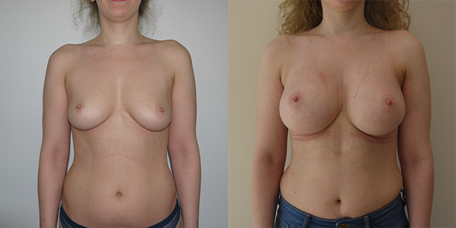 breast_befaft_01
