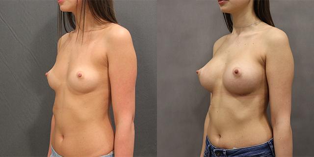 breast_befaft_02