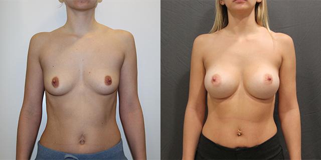 breast_befaft_03