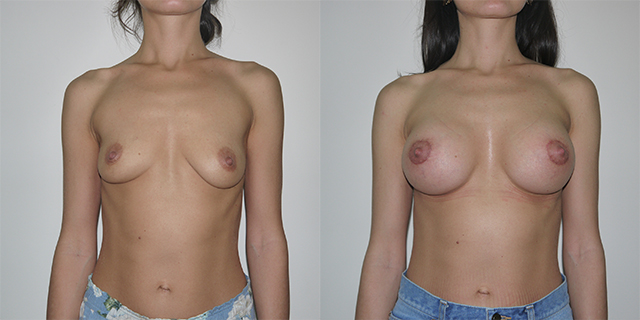 breast_befaft_06