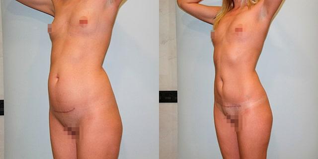 abdomino-results-02