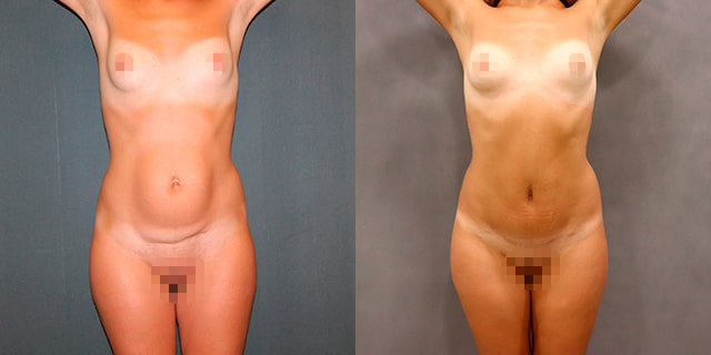 abdomino-results-03