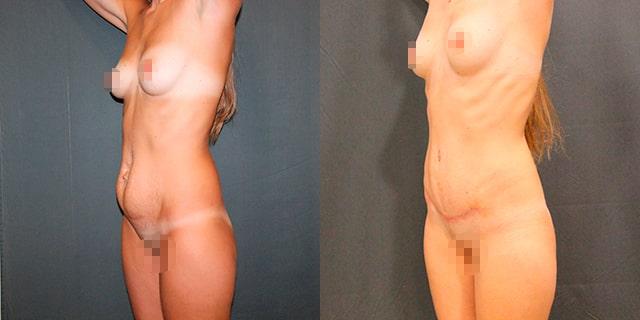 abdomino-results-05