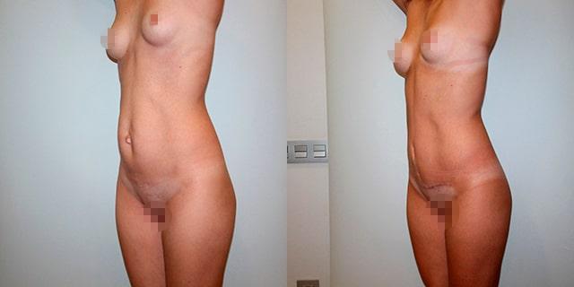 abdomino-results-06