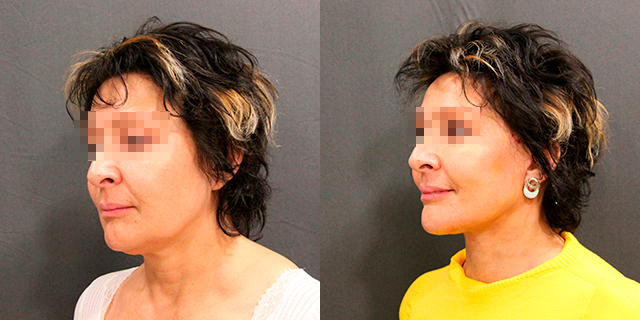 facelifting-results_01
