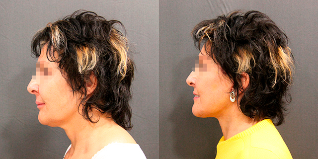 facelifting-results_01b