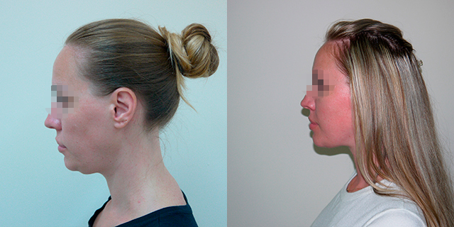 facelifting-results_02