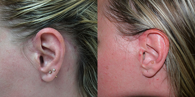 facelifting-results_02b