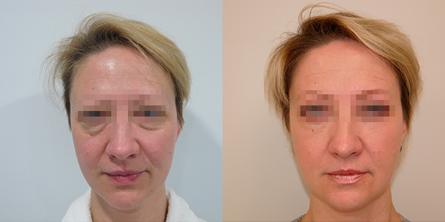 facelifting-results_03