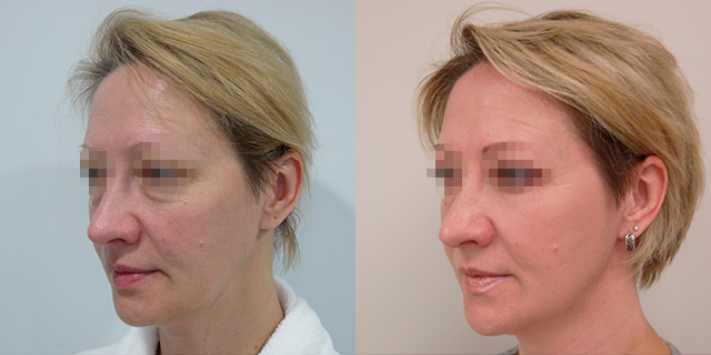 facelifting-results_03b
