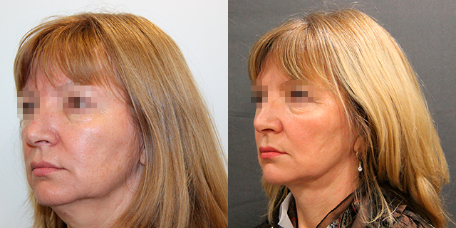 facelifting-results_04