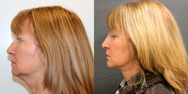 facelifting-results_04b