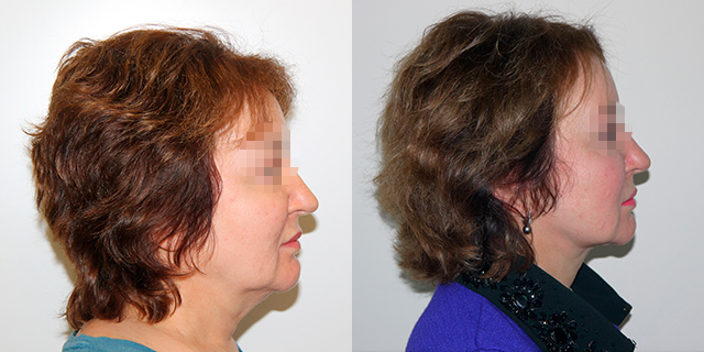 facelifting-results_05b