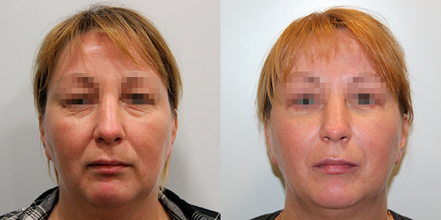 facelifting-results_06