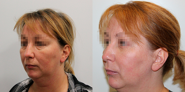 facelifting-results_06b