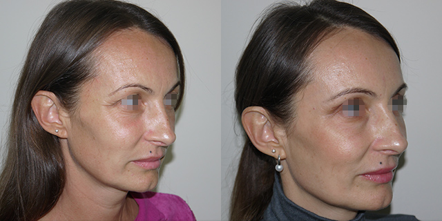 lipoface-results-02b