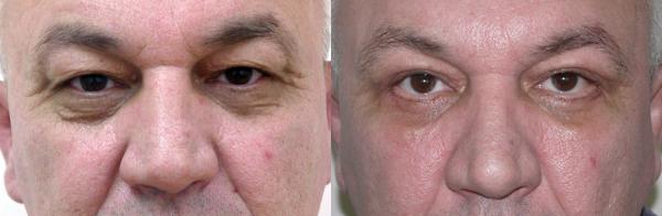 результат после лифтинга средней части лица