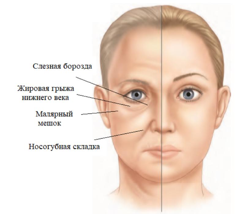 Возрастные изменения средней зоны лица.