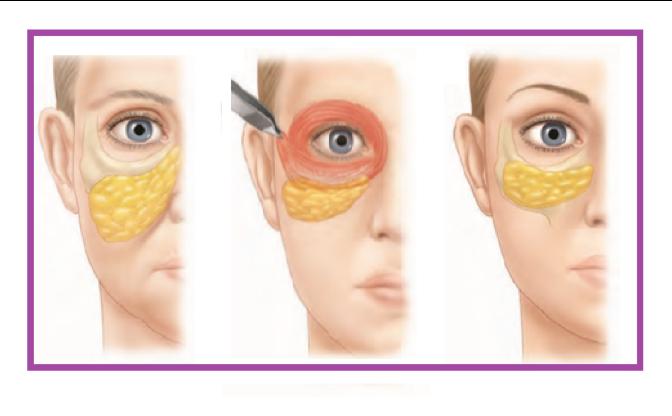 Схематическое изображение подъема скуловой клетчатки в результате лифтинга средней зоны лица